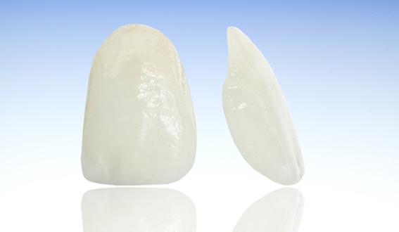 Dental crowns in lower hutt