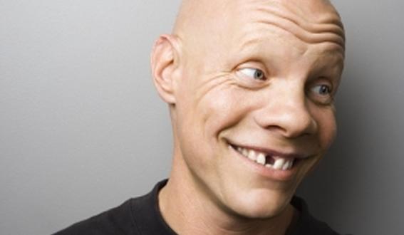 Denture Implants Lower Hutt